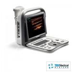 SonoScape S8 Exp